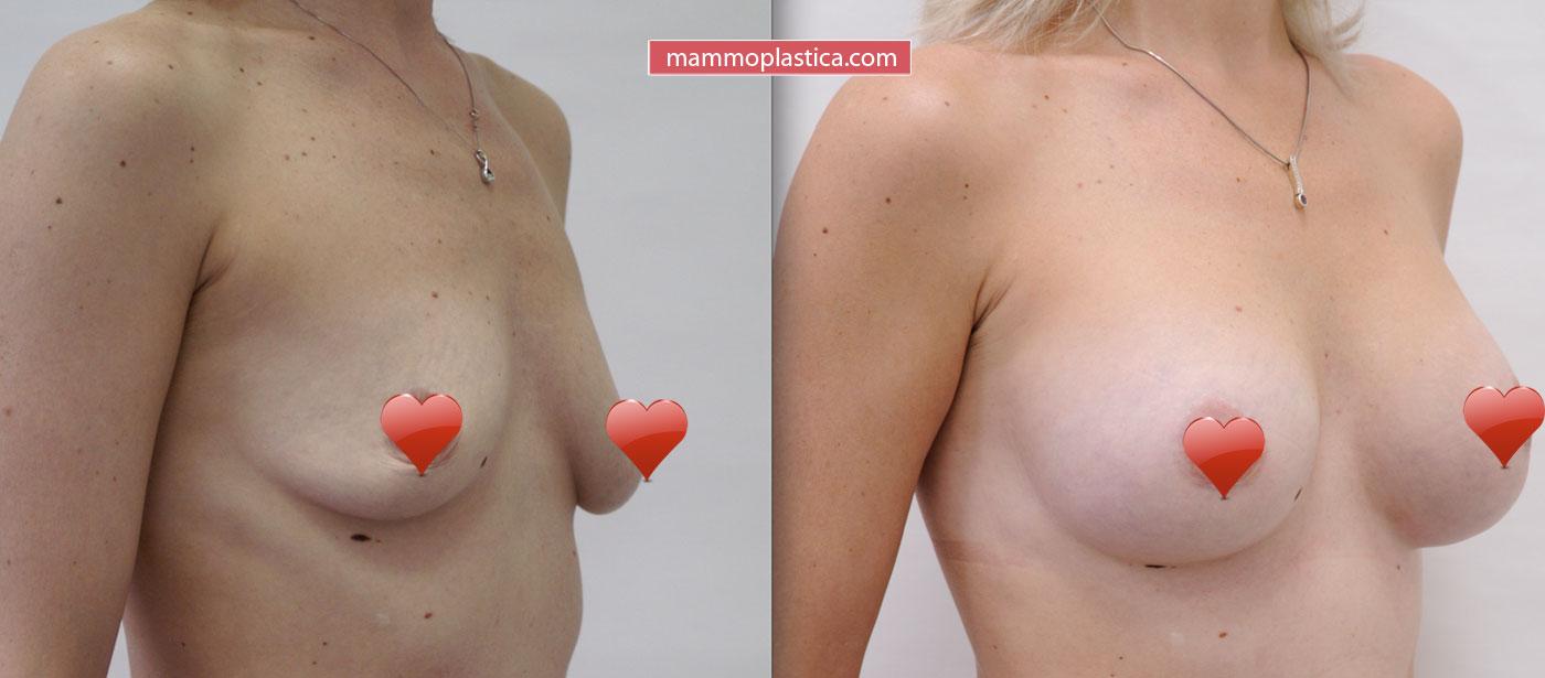 Подтяжка груди с увеличением имплантами — фото «До / После»