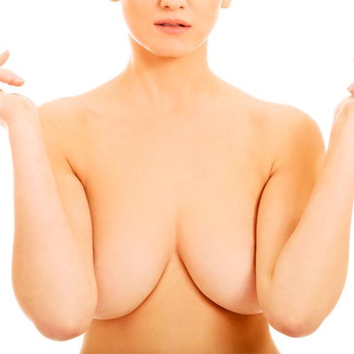 Уменьшение груди на медиальной питающей ножке (уменьшение грудных желез)