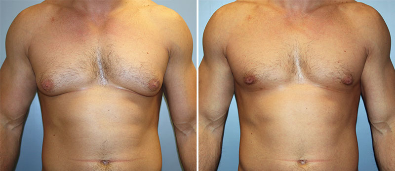 Гинекомастия у мужчин — Фото «До / После»