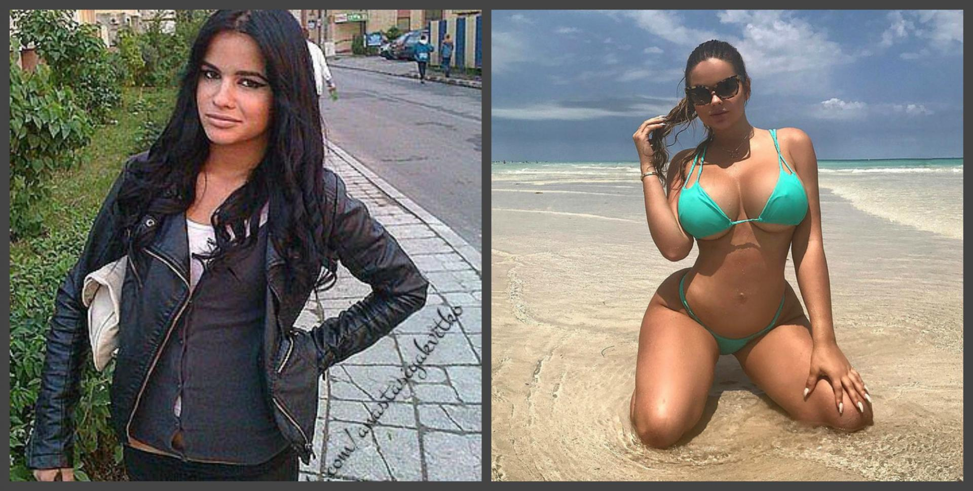 Анастасия Квитко до и после пластики груди