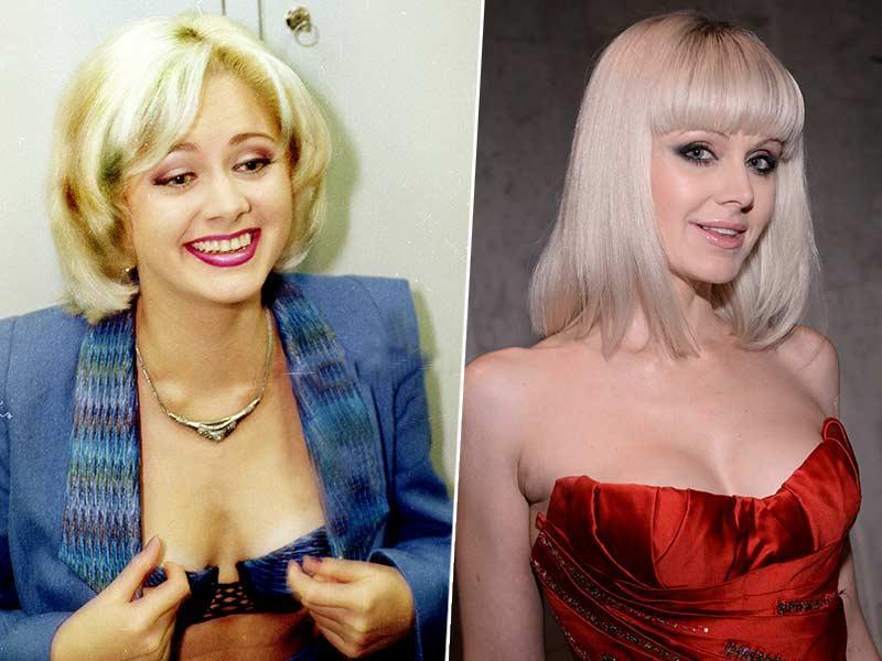 Натали до и после маммопластика