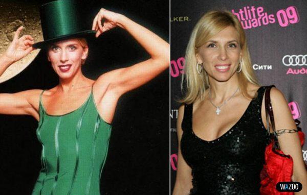 Алена Свиридова до и после пластики груди