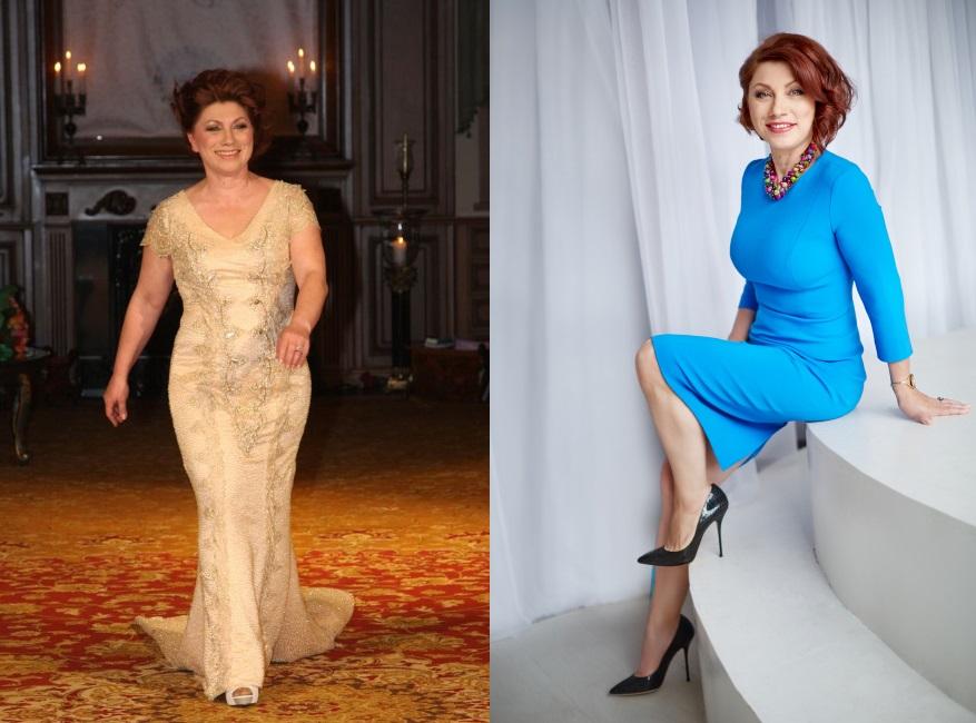 Роза Сябитова до и после маммопластика