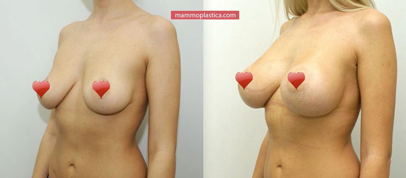 Увеличение груди имплантами «До / После»