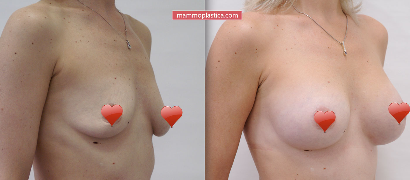 Фото до и после подтяжки груди с увеличением
