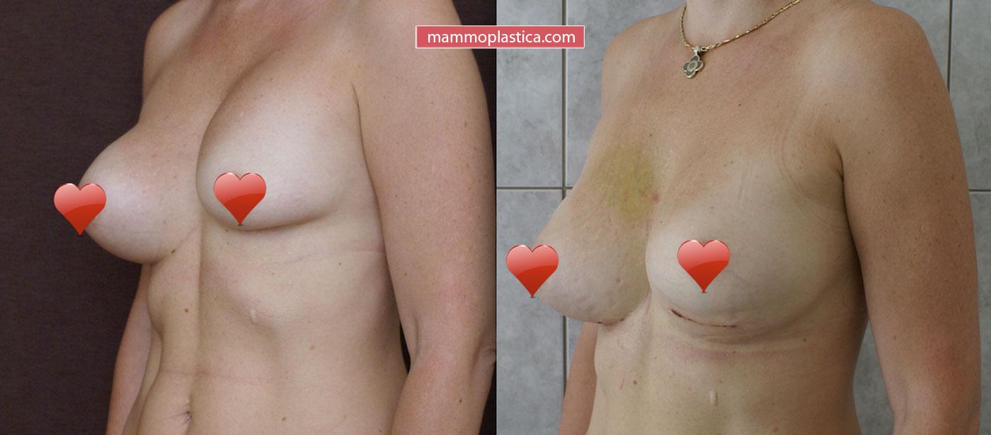 Замена имплантов груди — фото «До / После»