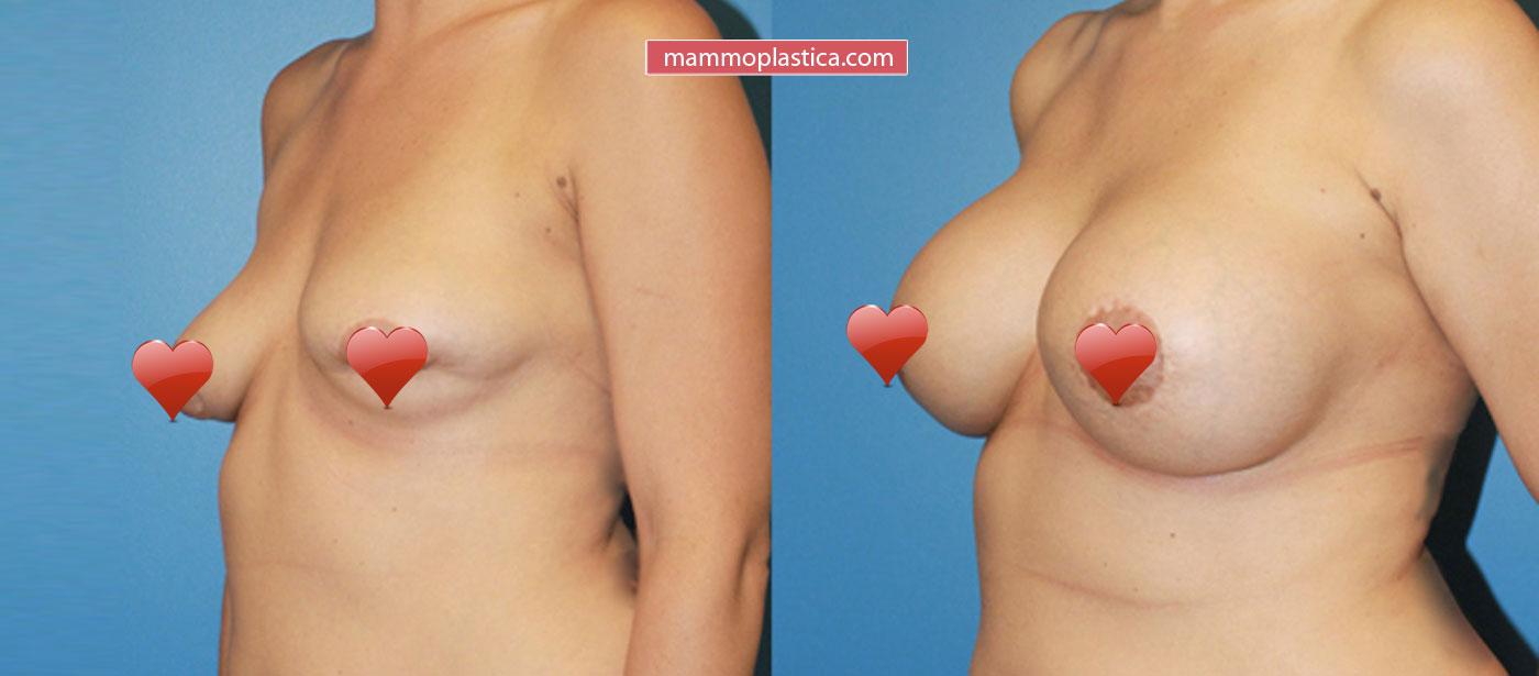 Замена (реэндопротезирование) имплантов — фото «До / После»