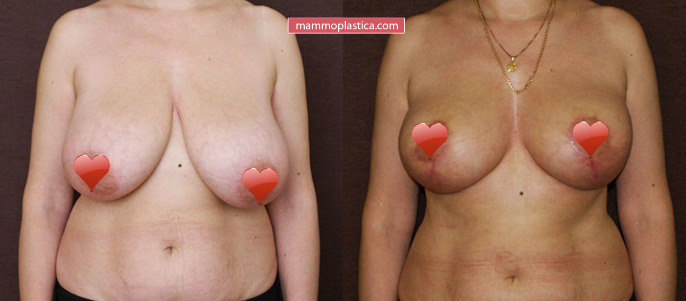 Уменьшение груди — фото «До / После»