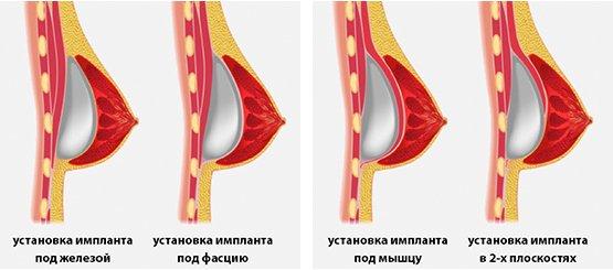 Увеличение груди имплантами в Москве
