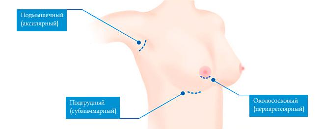 способы увеличения груди имплантами