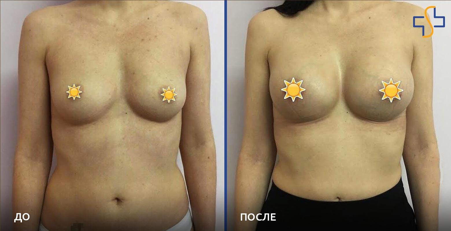 Увеличение груди — фото «До / После»
