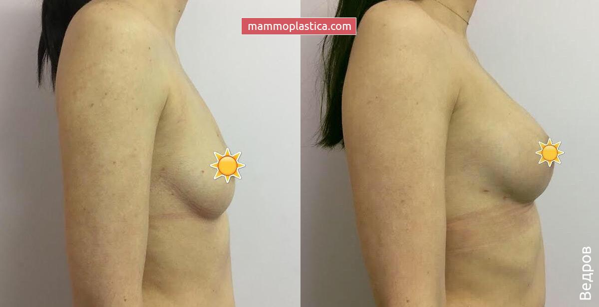 Увеличение груди от Ведрова О. В. — фото «До / После»