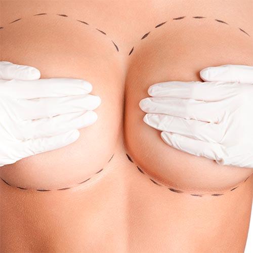 Повторная маммопластика: когда стоит заменить силиконовые импланты?