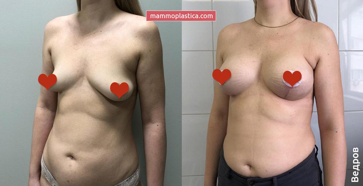 Увеличение и подтяжка груди от Ведрова О. В. — фото «До / После»