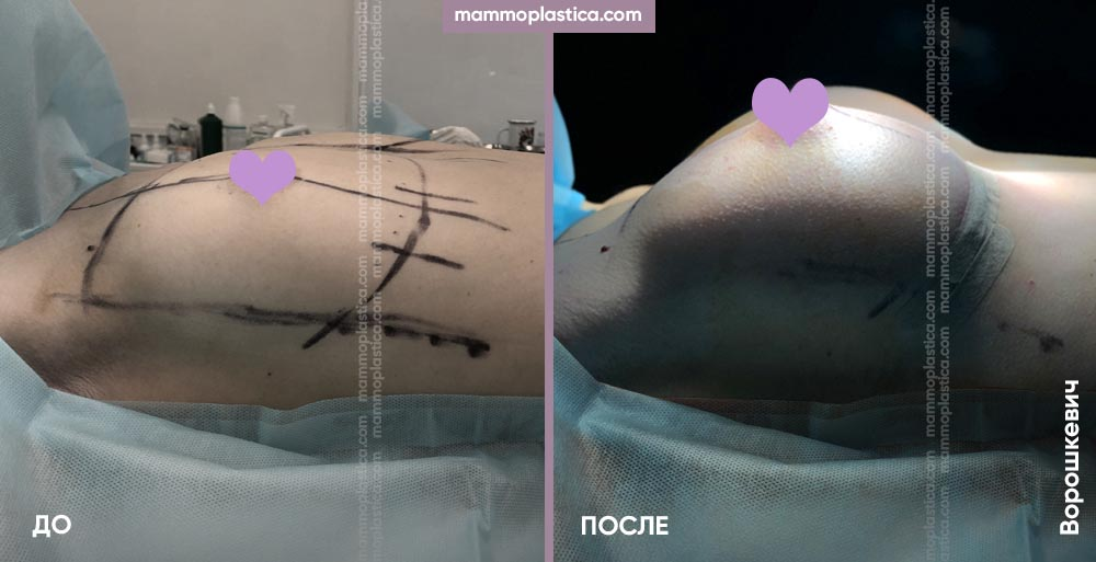 Увеличение груди – фото «До / После». Хирург Ворошкевич П.А.