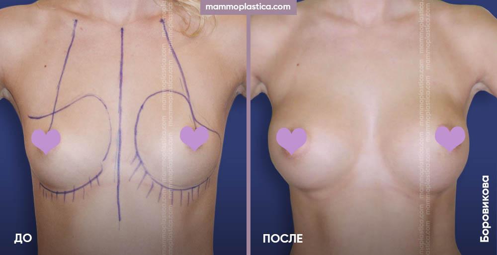 Увеличение груди (разрез через подмышку) – фото «До / После». Хирург Боровикова А. А.