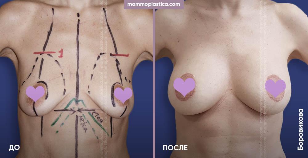 Увеличение груди с подтяжкой по ареоле – фото «До / После». Хирург Боровикова А. А.