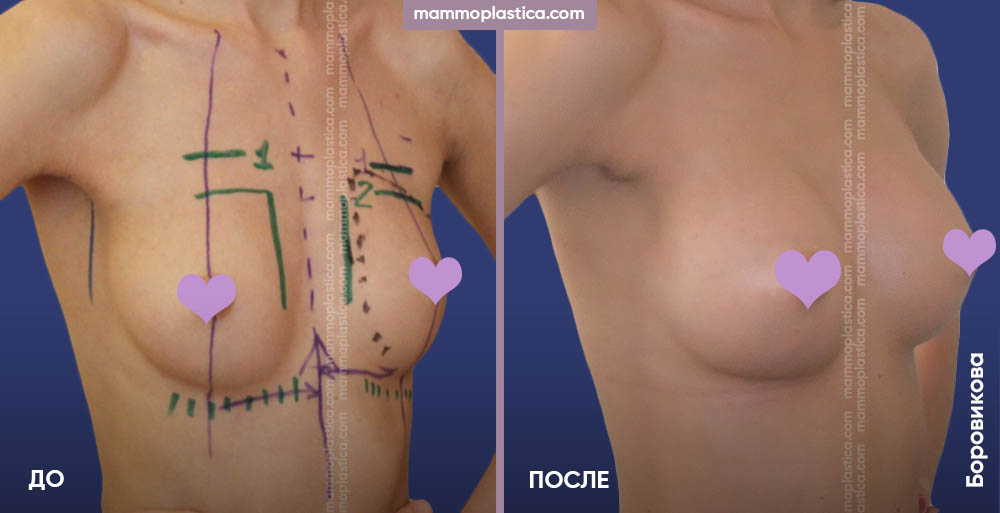 Увеличение груди (разрезы в подмышке) – фото «До / После». Хирург Боровикова А. А.