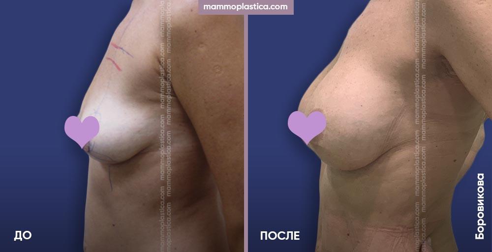 Увеличение груди + липофилинг груди – фото «До / После». Хирург Боровикова А. А.
