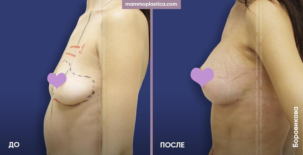 Увеличение груди – фото «До / После». Хирург Боровикова А. А.